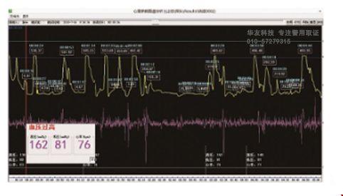 PMS心理监护跟踪分析系统附图.jpg